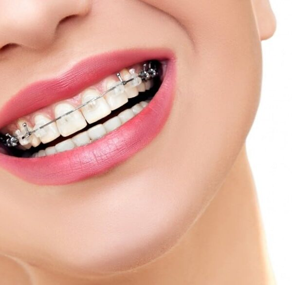 Cosmetic Dentistry Keysborough