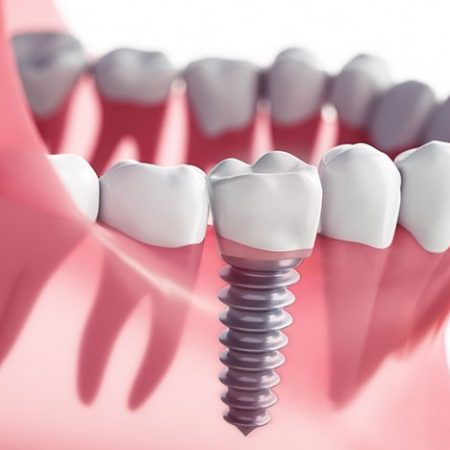 dental-implants-1